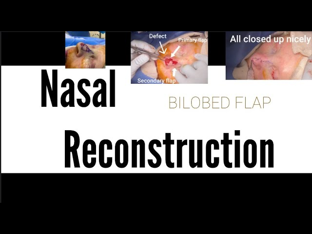 Nasal Reconstruction: Bilobed Flap after Mohs resection of Nasal Tip cancer