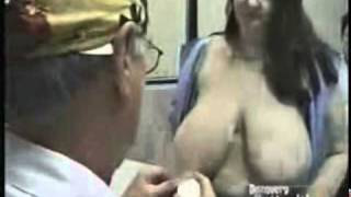 Repeat youtube video Scarless Breast Reduction on Discovery Health