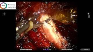 Робот-ассистированная тиреоидэктомия (Da Vinci) при раке щитовидной железы