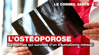 Ostéoporose : la fracture qui survient d'un traumatisme mineur #LeConseilSanté