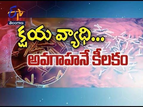 World TB Day 2019 | Sukhibhava | 24th March 2019 | Full Episode | ETV Telangana