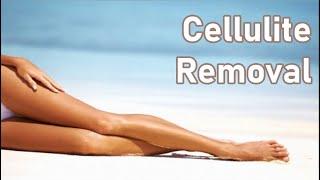 Eliminate Stubborn Cellulite Forever + Skin Toner + Perfect Skin - Classical Music
