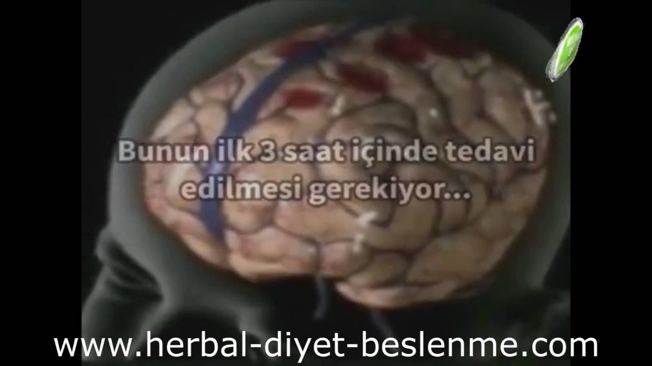 Beyin kanaması geçirenler ne zaman iyileşir ile Etiketlenen Konular 3