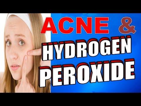 hqdefault - Does Hydrogen Peroxide Help Pimples