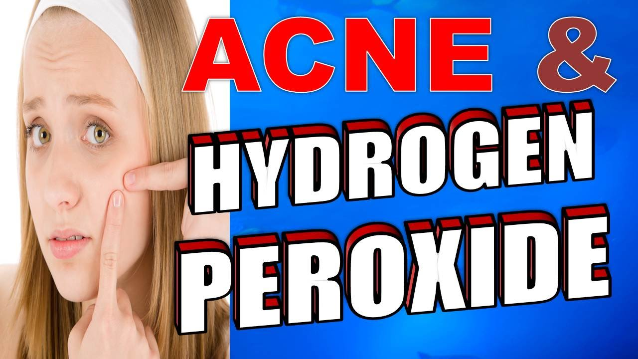 6 Best Ways To Use Hydrogen Peroxide For Teeth Whitening picture