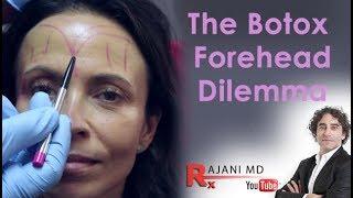 Botox Forehead Dilemma Explained- Dr Rajani