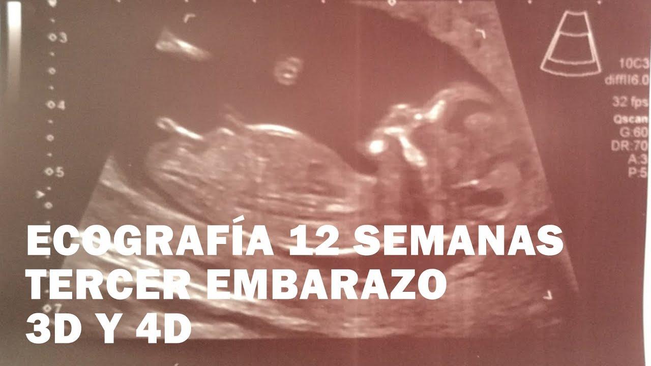 Ecografía De La Semana 12 Tercer Embarazo Youtube
