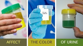 Your Urine color Reveal a lot Information about your health