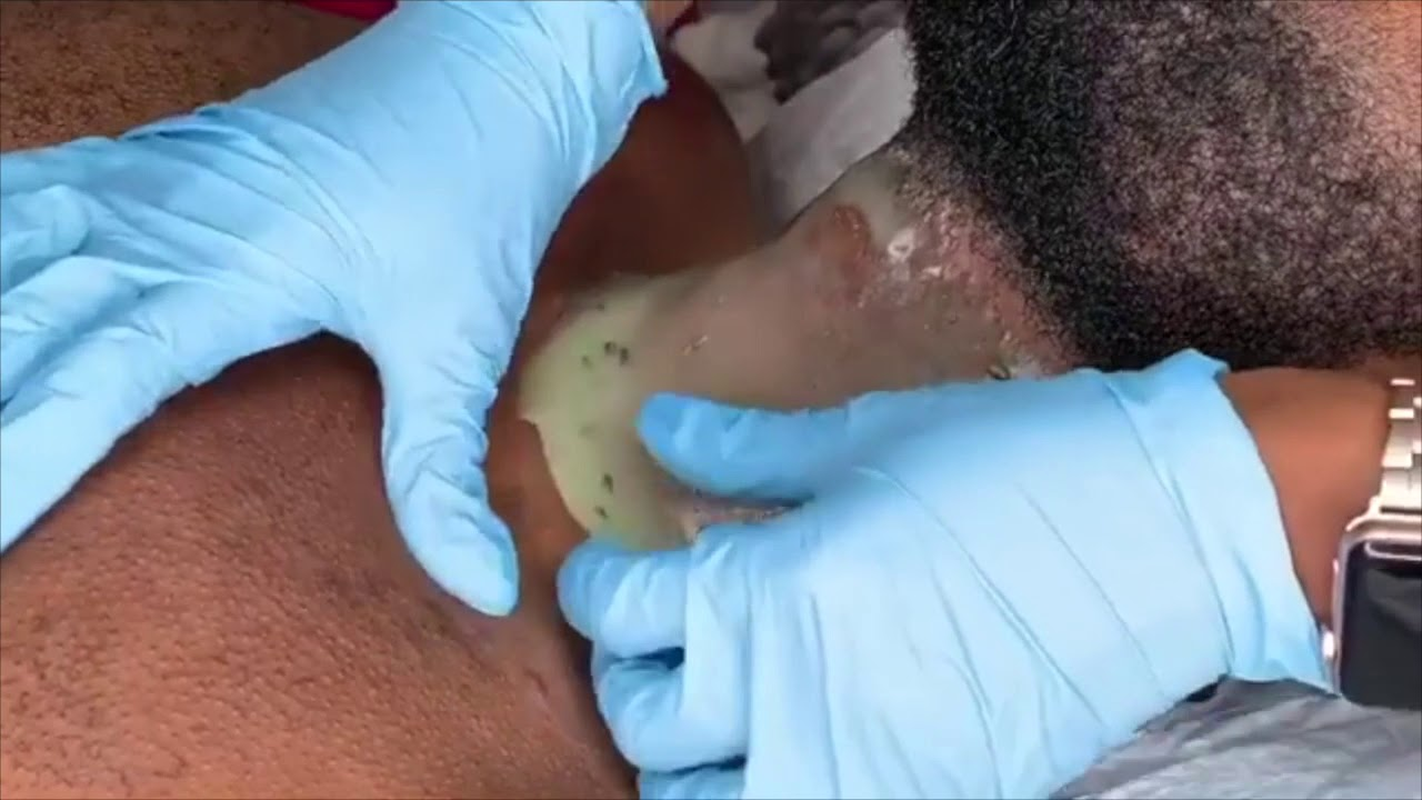 INGROWN HAIR REMOVAL JUICY LIVE DEMONSTRATION MALE NECK FACIAL 2020