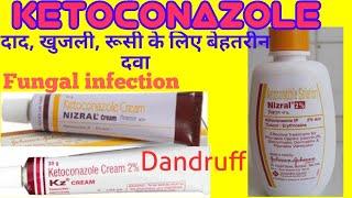 KETOCONAZOLE cream / Lotion/ shampoo (हिन्दी में) uses, how to apply