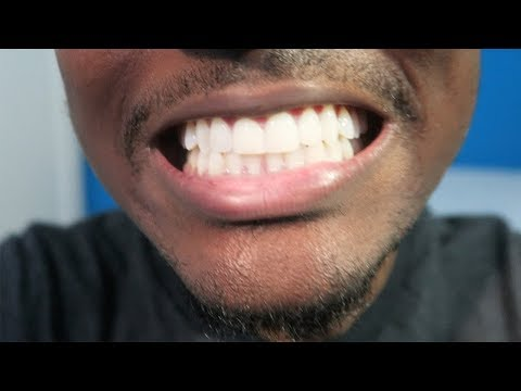 Crest 3D Whitestrips • 3 Months Later Review/Tips! (Whiten Your Teeth)