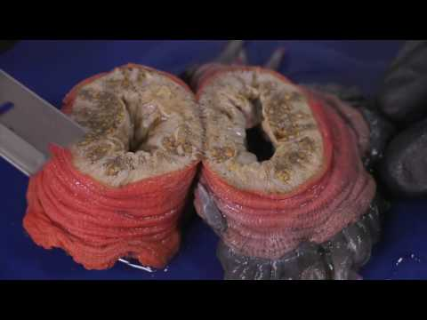 How To Dissect A Sea Anemone