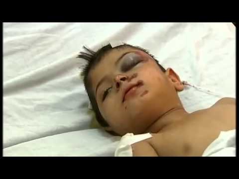 Channel 4 News - Is this a war on children, Gaza - July 2014