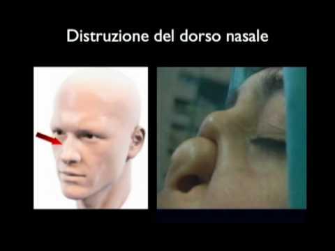 Lesioni distruttive facciali indotte dall 39 uso di cocaina - Sali da bagno droga effetti ...