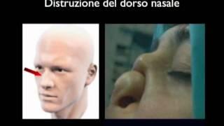 Repeat youtube video Lesioni distruttive facciali indotte dall'uso di cocaina (Video breve)