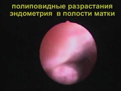 Выделения после гистероскопии