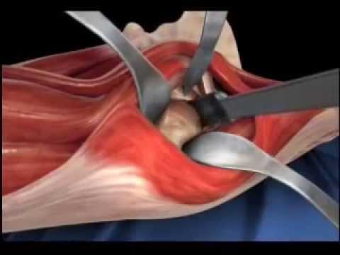 Замена тазобедренного сустава в мониках операция коленного сустава стоимость