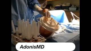 Fat Harvesting@AdonisMD#liposuction#fattransfer#unwantedfat#bodywrap#bodyshape#summer#vacation Thumbnail
