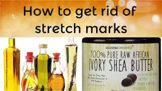 Stretch mark-ல் இருந்து விடுபட மற்றும் stretch marks வாராமல் பராமரிக்க/Molivera Shea butter review