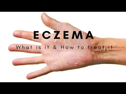 Eczema / Atopic Dermatitis Cure