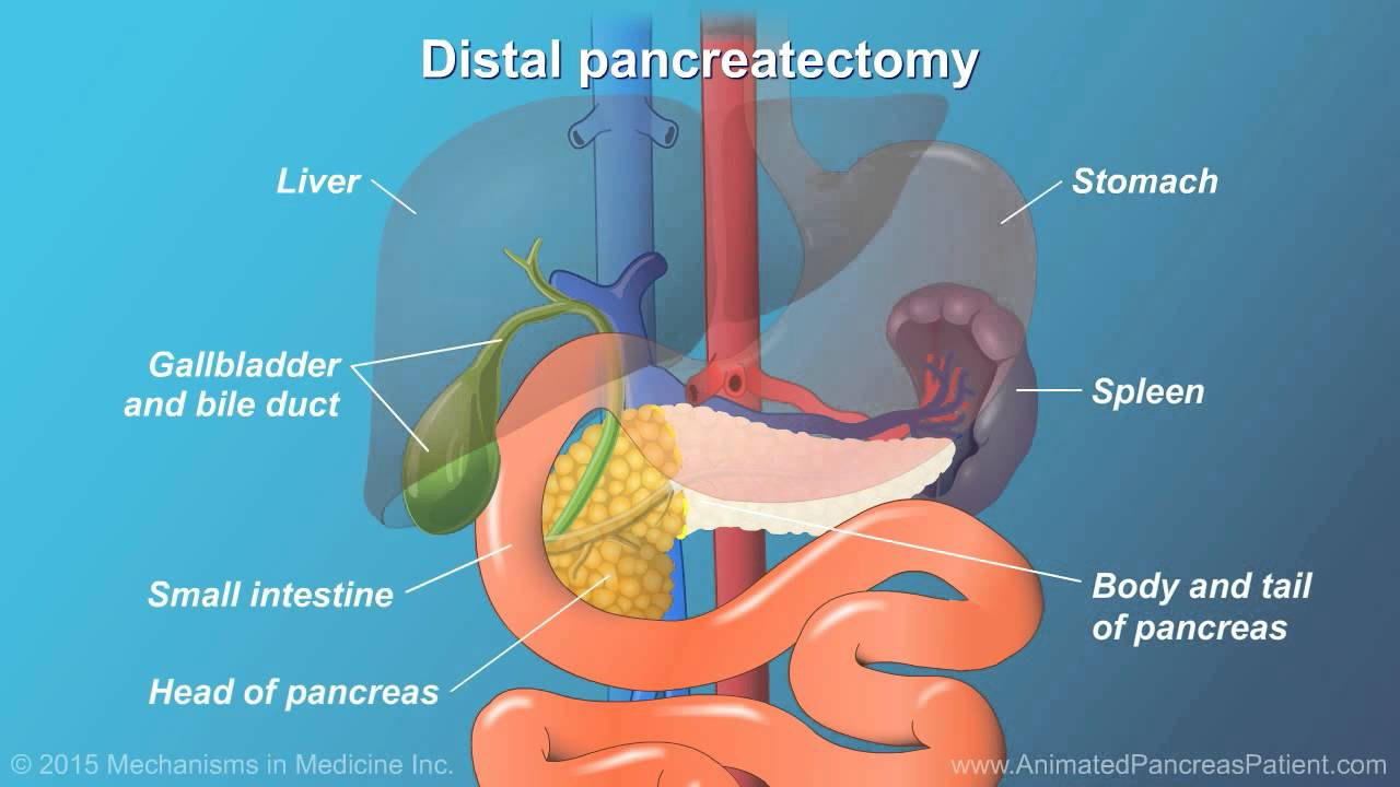 Pancreatic Surgery Benefits Risks And Relevant Anatomy Youtube