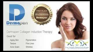 Dermapen a Microneedling Treatment at Las Vegas Dermatology Thumbnail