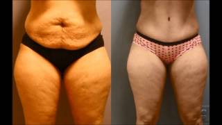 Tummy Tuck And After Dr Emily Pollard