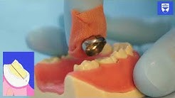 Stainless Steel Crown Technique for a Primary Molar Tooth