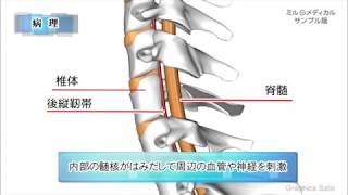 頸椎後縦靭帯骨化症/2分で分かる医療動画辞典 ミルメディカル