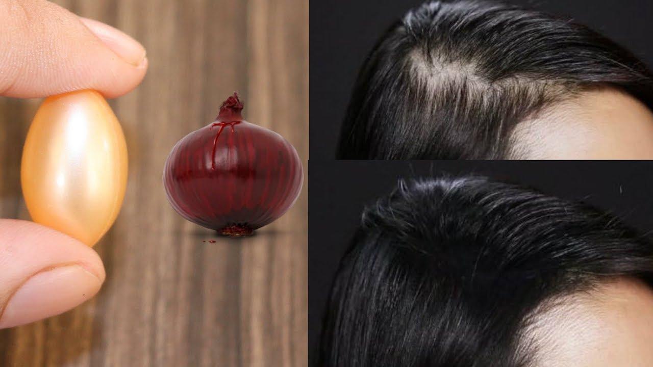HAIR REGROWTH SERUM ONION AND VITAMIN E OIL HAIR GROWTH
