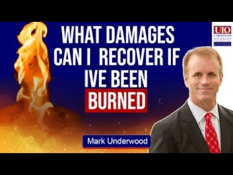 What damages can I recover if I've been burned?