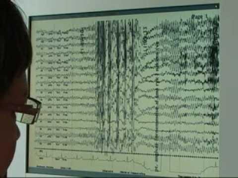 Epilepsy Inside Out