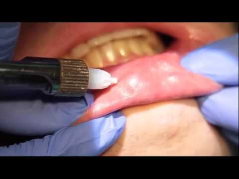 Удаление ретенционных кист на губе. Профессор Орлов