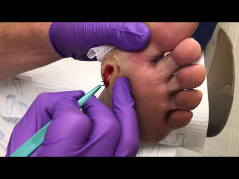 This is NOT a callus, Diabetic Ulcer Debridement....