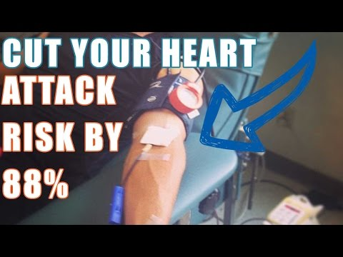 High Blood Pressure & blood viscosity and blood donation