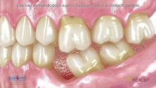 Odontologia Carvalho - Perda de um dente