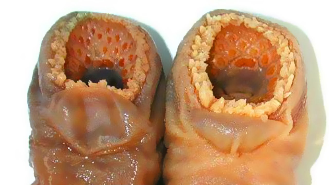 Lamprey Disease Trypophobia Bizarre Feet Youtube