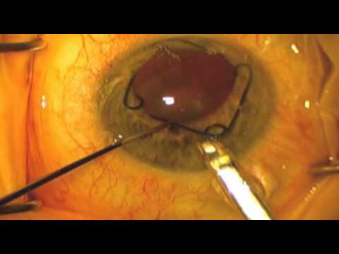 Malyugin Ring® Insertion and Removal - YouTube