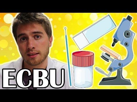 - sang dans les urines du pipi au microscope ecbu