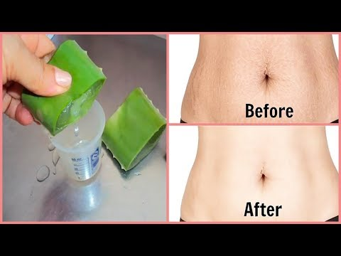 Remove STRETCH MARKS, In Just Few Minutes, Get Rid of Stretch Marks Super Fast | ABC HEALTH