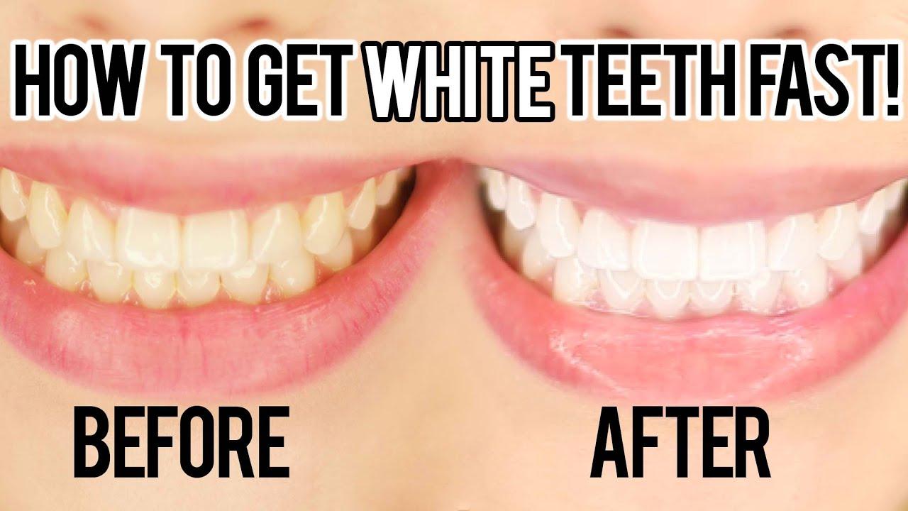 How To Whiten Your Teeth Fast I Nicole Matthews I Youtube
