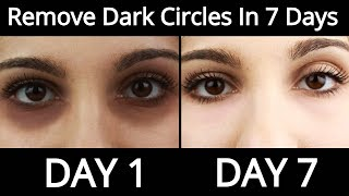 Top 5 Home Remedies To Remove Dark Circles Permanently In 7 Days - How To Remove Dark Circles