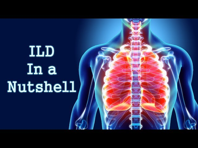 Interstitial Lung Disease (ILD) in a Nutshell