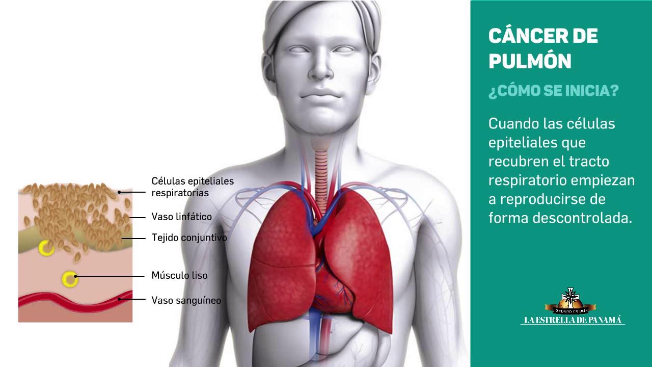 que es cancer broncogenico coccidia giardia și spirochete