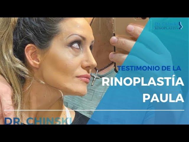 Testimonio de Paula acerca de su Rinoplastía Estética. Resultado antes y después. Dr. Chinski.