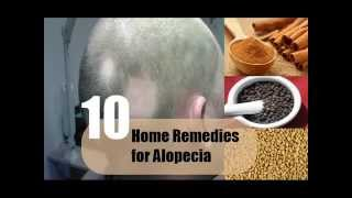 10 Home Remedies for Alopecia