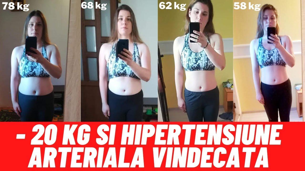 Inositol pierderea în greutate succes |
