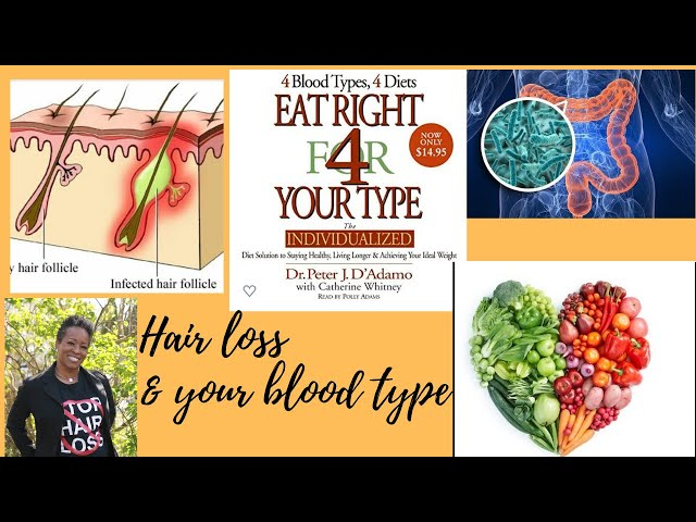 Hair loss and Eating right for your blood type