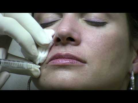 how to get rid of nasolabial folds without surgery