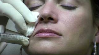 Juvederm Ultra Injection to NasoLabial Folds (laugh lines) by Reston Virginia Cosmetic Surgeon thumbnail